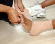 Sprain signs and symptoms